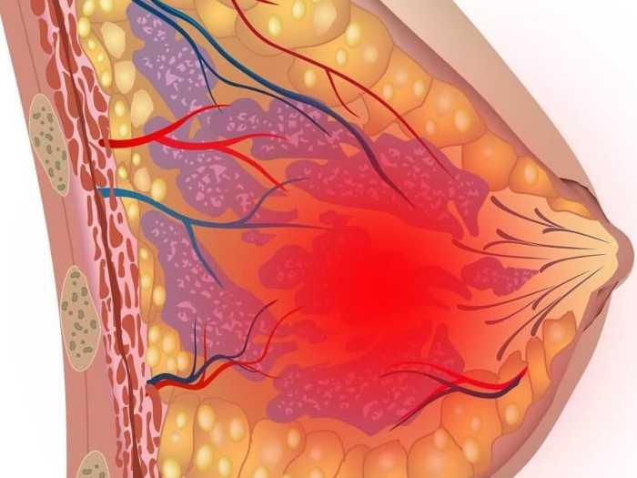 Локализация боли в груди при кормлении
