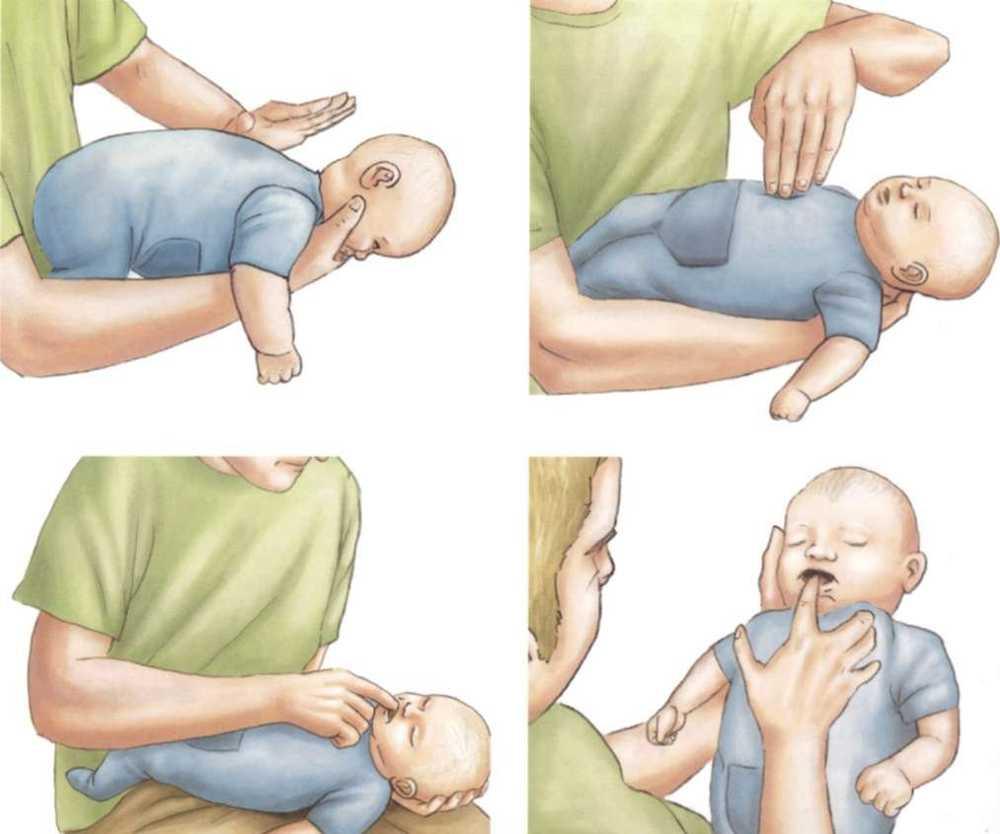 Первая помощь ребенку при наличии инородного предмета