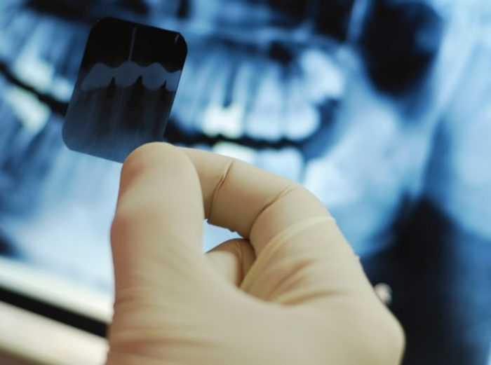 Результат проведения рентгена полости рта