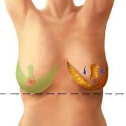 Ассиметрия груди средней степени