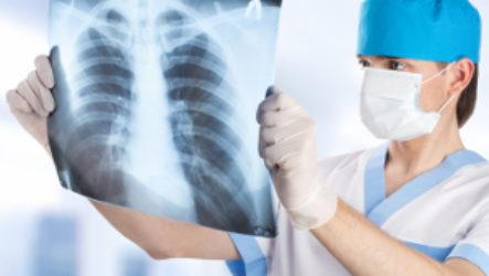 Не будет ли вреда кормящей маме от рентгена при грудном вскармливании
