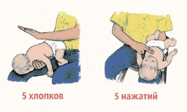 Освобождение дыхательных путей от слюны и соплей